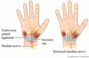 Two hands showing the causes of carpal tunnel syndrome