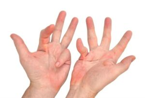 A pair of hands suffering from Dupuytren's disease on Ladan Hajipour .com