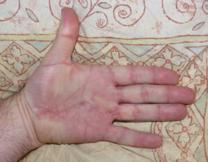 Hand with scars after being treated for Dupuytren's disease