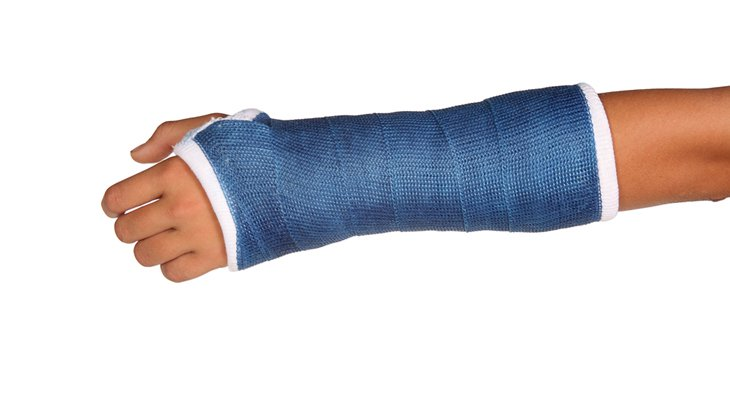 Wrist with fracture in a blue cast. Learning about wrist fracture treatments with Ladan Hajipour
