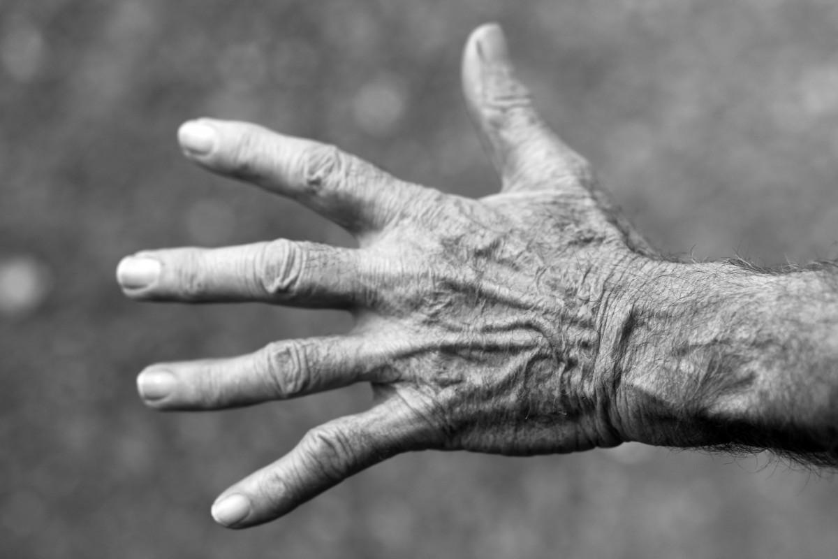 Rheumatoid finger arthritis