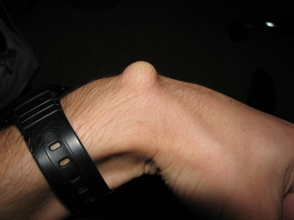 Ganglion Cyst on the wrist