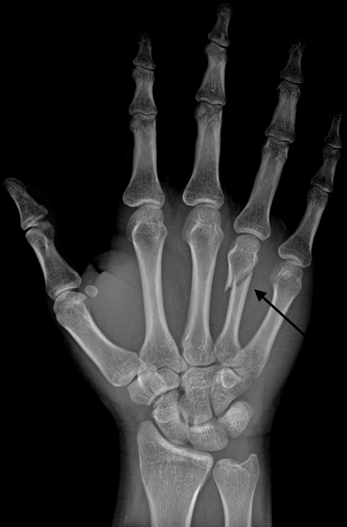 Broken metacarpal bone