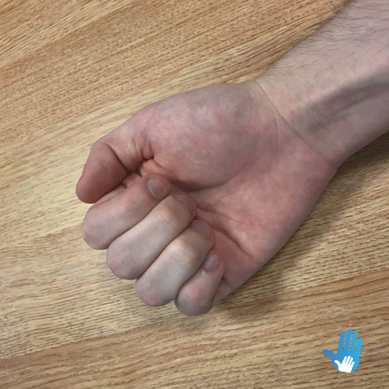 fist ball exercise for osteoarthritis
