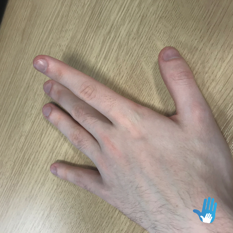 finger lifts exercise for osteoarthritis