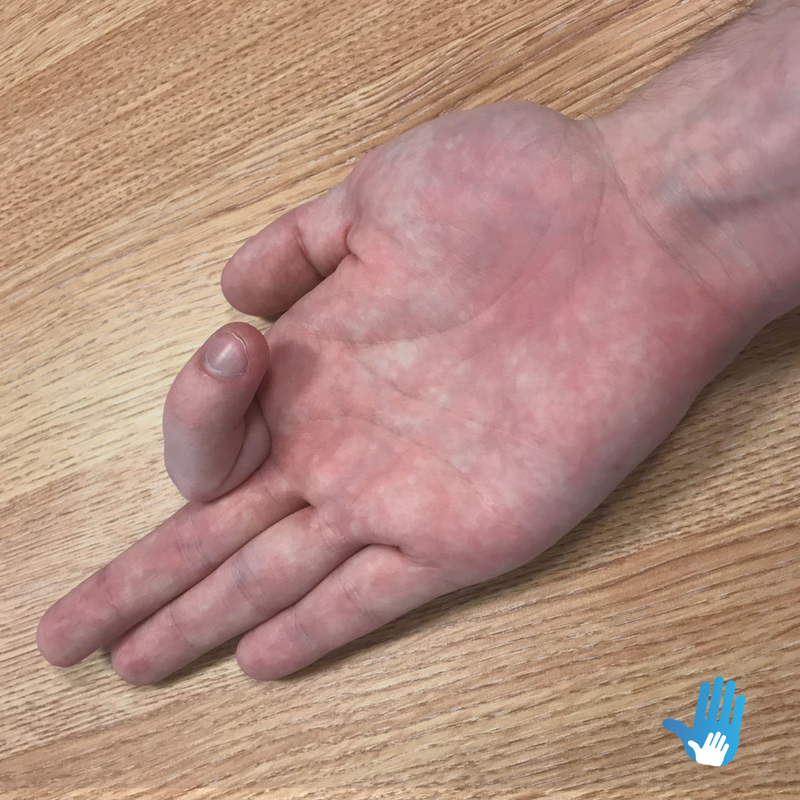 finger bend exercises for osteoarthritis