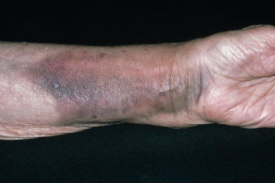 broken wrist swelling