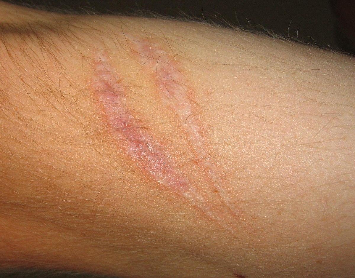 scar on a wrist