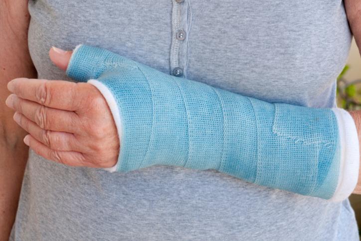 broken wrist in a cast