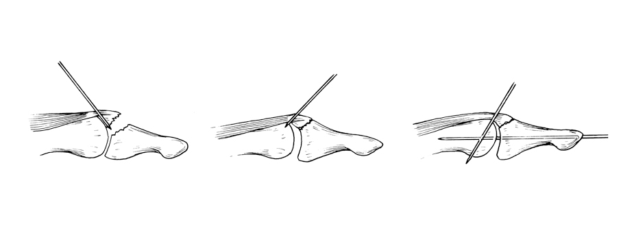 Skeleton sketch of tendons being pinned into place during Mallet finger treatment.